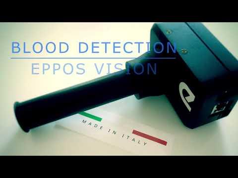 Blood detection on egg grader