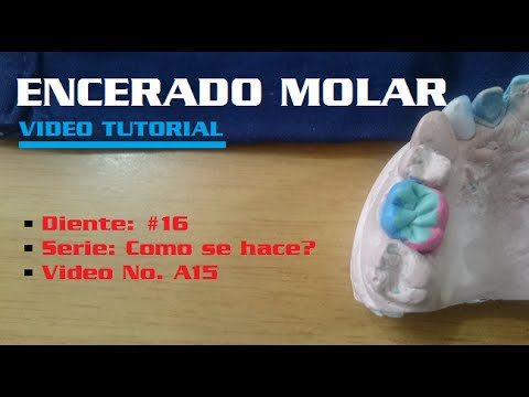 Encerado Dental: Primer Molar Superior (3/3) - YouTube