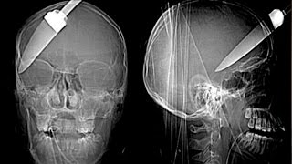 Top 15 Strangest Things Found in an X-Ray