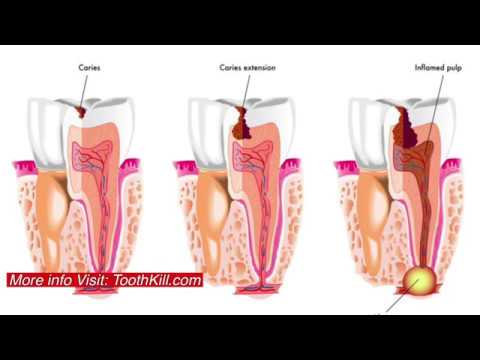 abscessed-tooth-pain-|-education-and-how-to-stop-infection