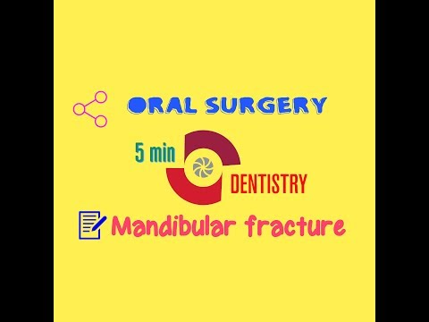 MANDIBULAR FRACTURE - Oral Surgery - 5 Minute Dentistry - Quick Notes