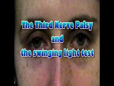 Pupil testing and responses: 3rd nerve palsy