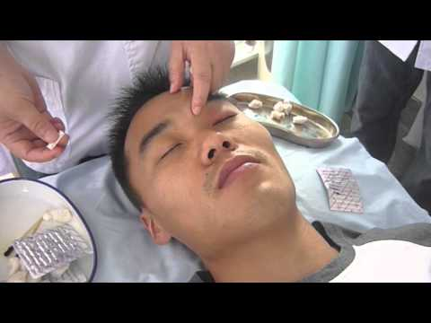 Localizzazione e Infissione dei Punti di Agopuntura - BL2