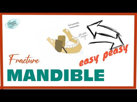 FAVOURABLE AND UNFAVOURABLE MANDIBULAR FRACTURE