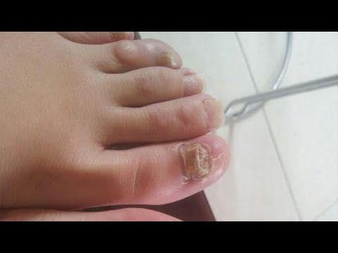 灰指甲易傳染、難痊癒?告訴你一個徹底治療秘方,輕鬆根除灰指甲!
