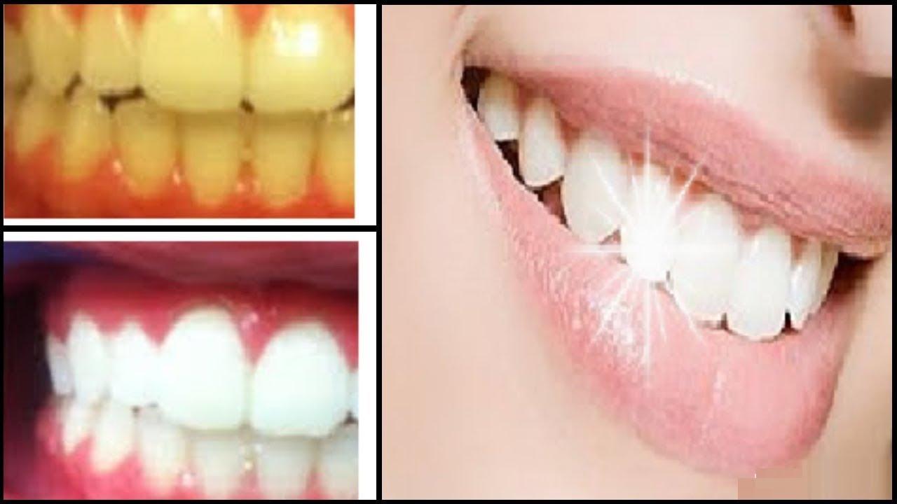 2 Dakikada  DİŞLER Nasıl BEYAZLAR? Sararmış Dişlere Çözüm - EVDE DİŞ BEYAZLATMA