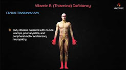 Vitamin B1 (Thiamine) Deficiency - USMLE Biochemistry Vitamins Case Based Discussion
