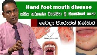 Hand foot mouth disease සනීප කරගන්න විශේෂිත වු ඖෂධයක් නැහැ | Piyum Vila | 24-06-2019 | Siyatha TV Thumbnail