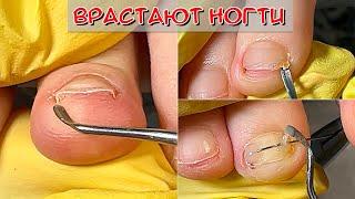 Педикюр вросшие ногти / Врастают ногти на ногах