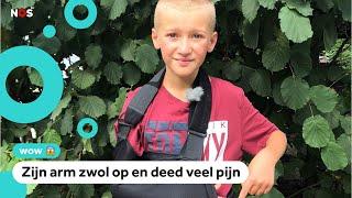 Freek Vonk waarschuwt nadat Liam (11) werd gebeten door een slang