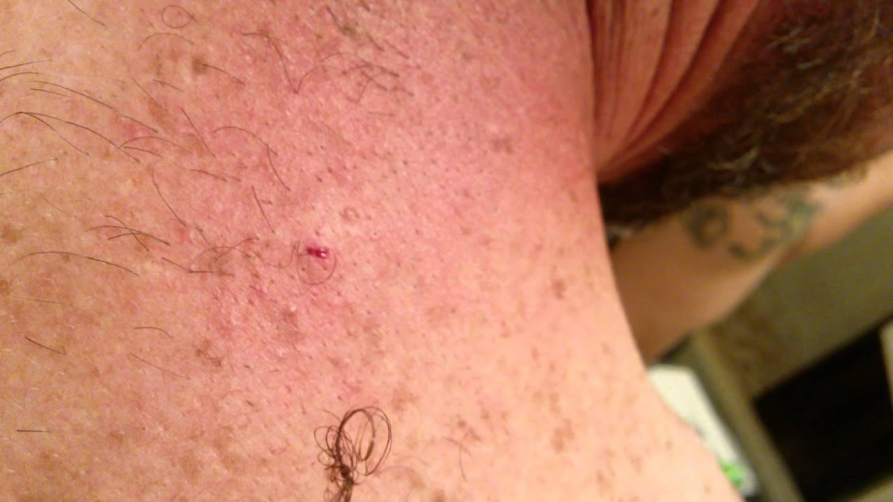 ingrown hair on back of neck spefashion