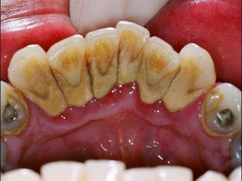 โรคเหงือก เหงือกอักเสบ (Gingivitis) คืออะไร
