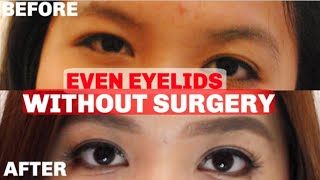 HOW I EVENED OUT MY EYELIDS WITHOUT SURGERY
