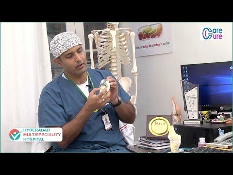 Knee pain - Reasons & Relief | Knee Pain Treatment | Knee Pain | Dr M Pradeep Reddy