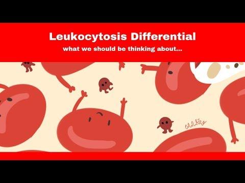 prostatitis con tratamiento cks