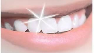 Cara Cepat Memutihkan Gigi Mp3