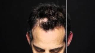 Скажи НЕТ залысинам и редким волосам!!!(, 2014-01-27T09:20:38.000Z)