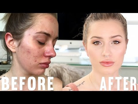 hqdefault - What Is A Good Powder Foundation For Acne Prone Skin