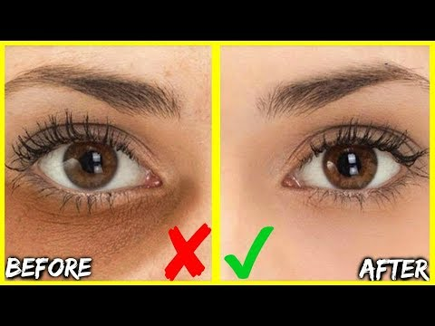how-to-get-rid-of-dark-under-eye-circles-&-bags-in-days!-best-3-oils-for-eye-wrinkles-&-puffy-eyes!