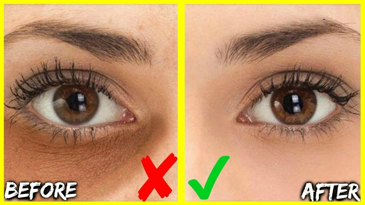 How To Get Rid Of Dark Under Eye Circles Bags In Days Best 3 Oils For Eye Wrinkles Puffy Eyes