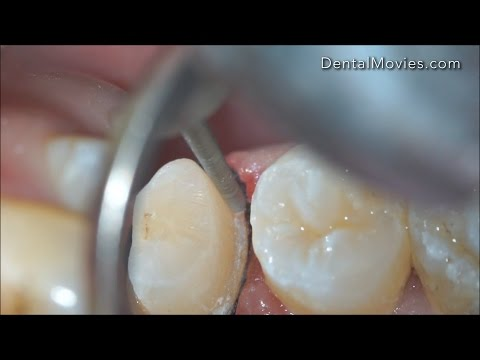 Magnification implications in different dental specialities