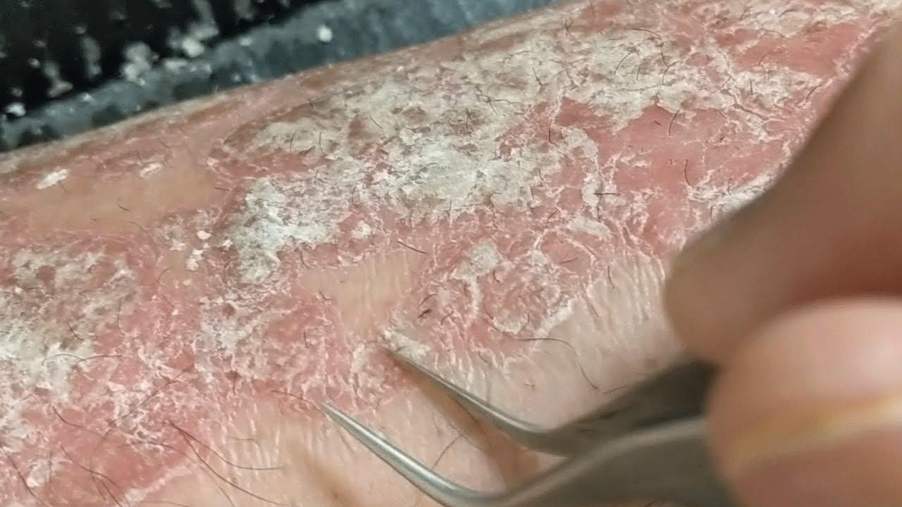 scalp psoriasis removal videos)