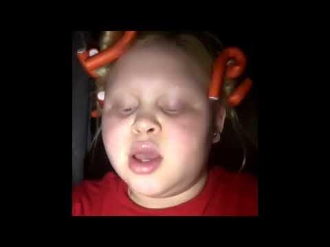 Cute albino girl singing