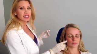 Give your cheeks a natural looking lift with Radiesse at PowerMD!