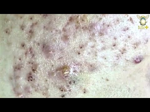How To Get Rid Of Acne - Blackheads Removal On The Face With Oddly Satisfying Relaxing Music 121016!