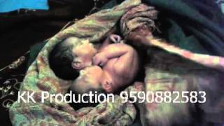 Two Heads Miracle Baby in Kanpur UP