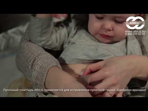 Как избавиться от пупочной грыжи у ребенка
