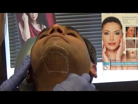 #Kybella Denver - Watch Dr. Shah get the fat melting shot everyone is talking about!