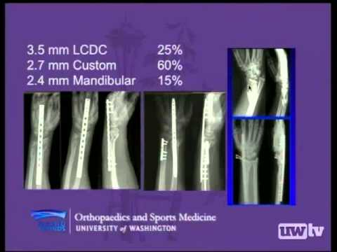 Orthopaedic Grand Rounds: Contemporary Perspectives in Distal Radius Fracture Fixation
