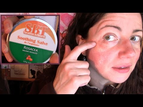 Skin Reaction Disaster! How I Recovered My Rosacea Prone Face (not Sponsored) | Rosy JulieBC