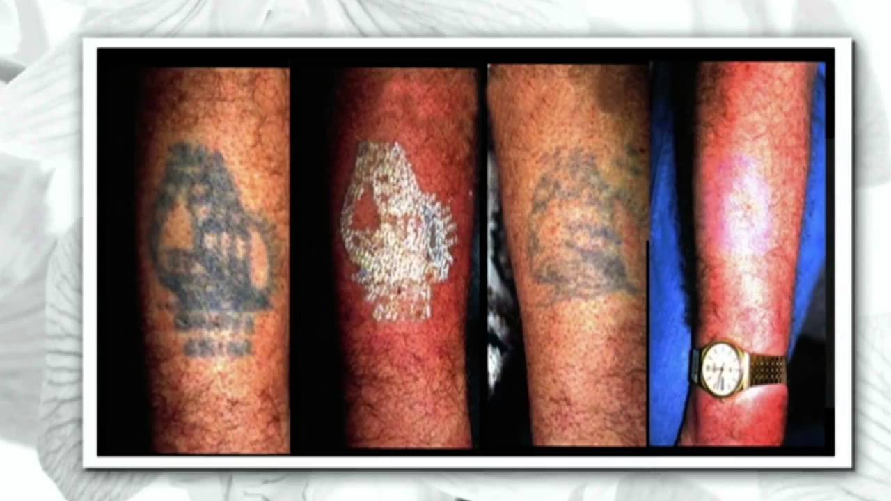 Picosure laser tattoo removal treatment on the steven and for Natural remedies for tattoo removal