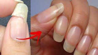 Ремонт сломанного ногтя Самый надежный и простой способ Как ПОЧИНИТЬ сломанный ноготь 2 СПОСОБА