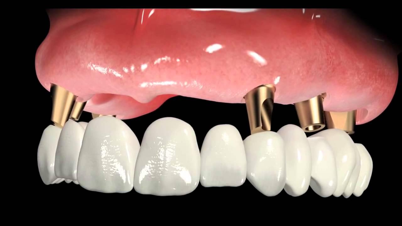 Осложнения после имплантации зубов автор статьи:.