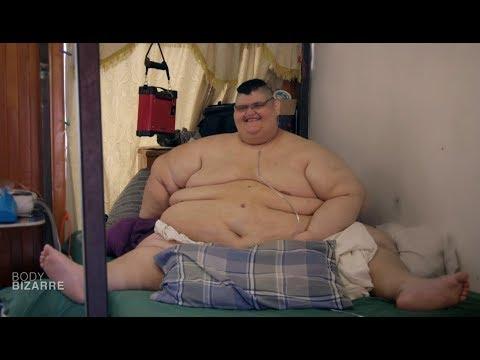L'homme le plus gros du monde perd 225 kilos !