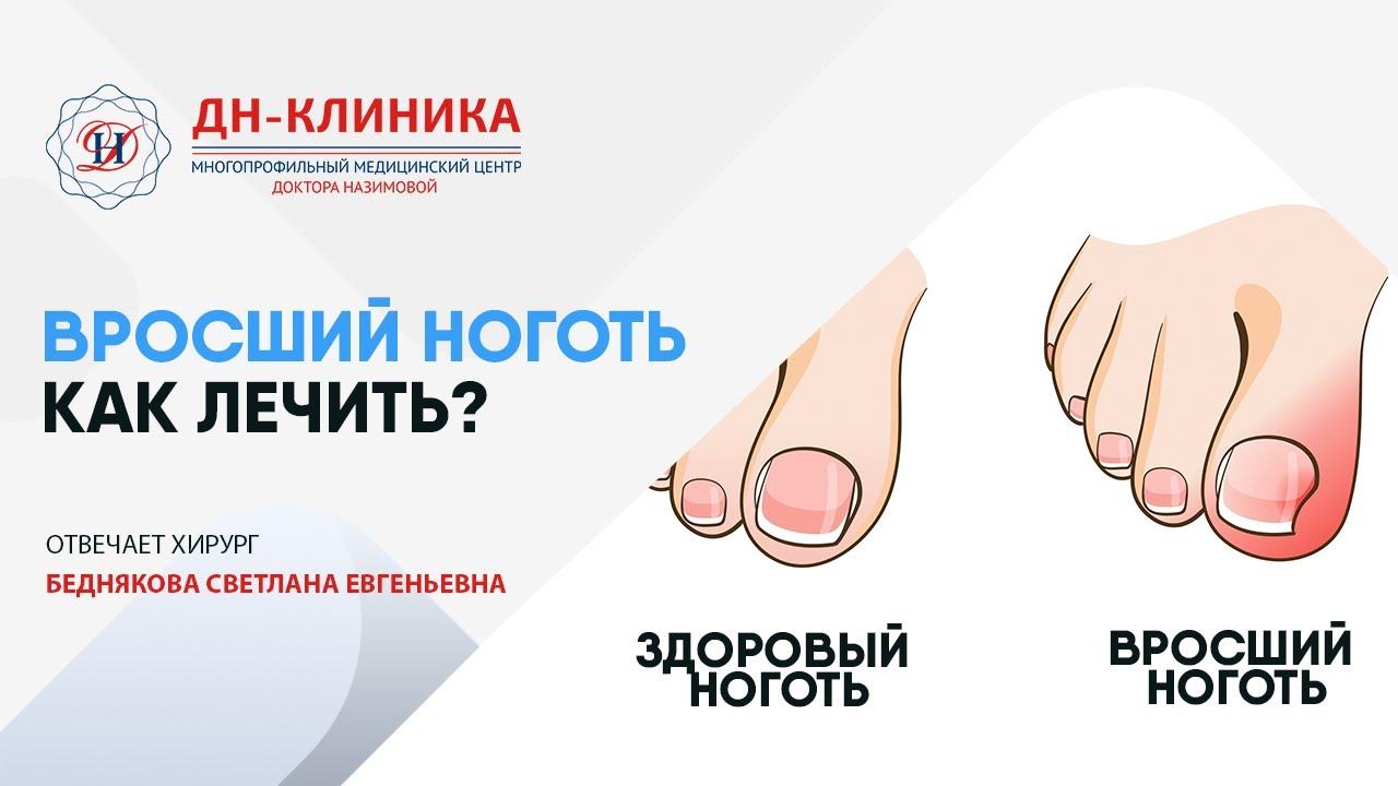 Вросший ноготь лечение в Клинике Доктора Назимовой