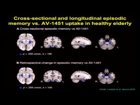 Cognitive Aging Summit III | Dr. William Jagust | Age-Related Pathology, Cognition, and Resilience
