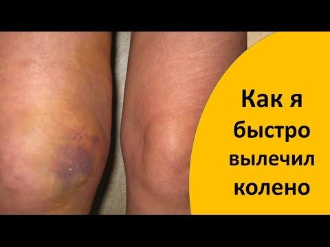 Как долго может болеть колено после ушиба