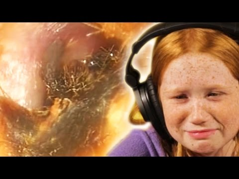 Thumbnail: Kids Watch Gross Extraction Videos For The First Time
