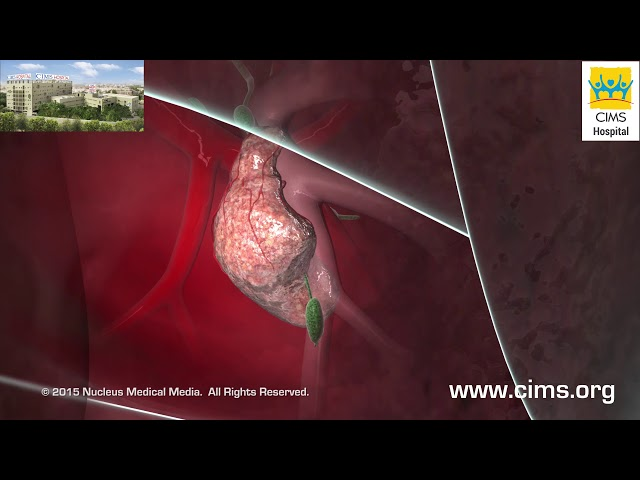 Transthoracic Needle Biopsy - CIMS Hospital