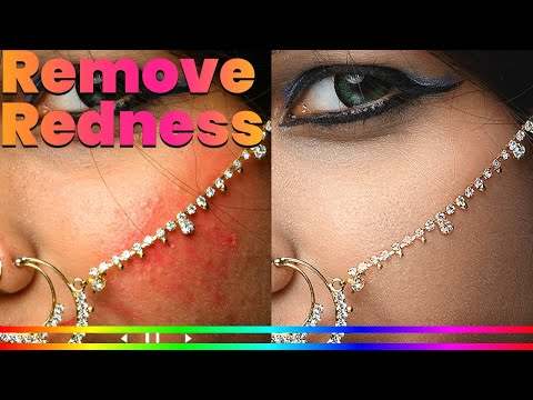 How To Remove Skin Redness - Photoshop Tutorial