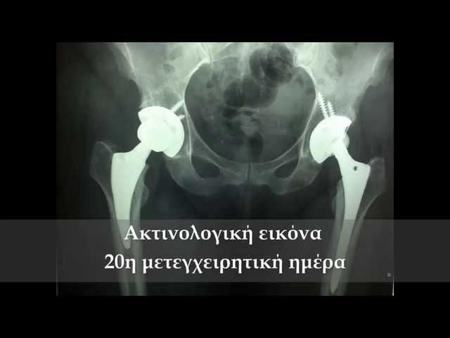 Ποιότητα βάδισης 20 ημερών - ALMIS - Mini Hip - Δρ. Ν. Ροΐδης
