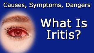 What Is Iritis? Causes, Symptoms, Dangers To Vision Health
