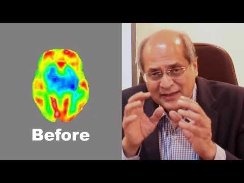 Dr Alok Sharma explains about Stem Cell Therapy in Neurological Disorders
