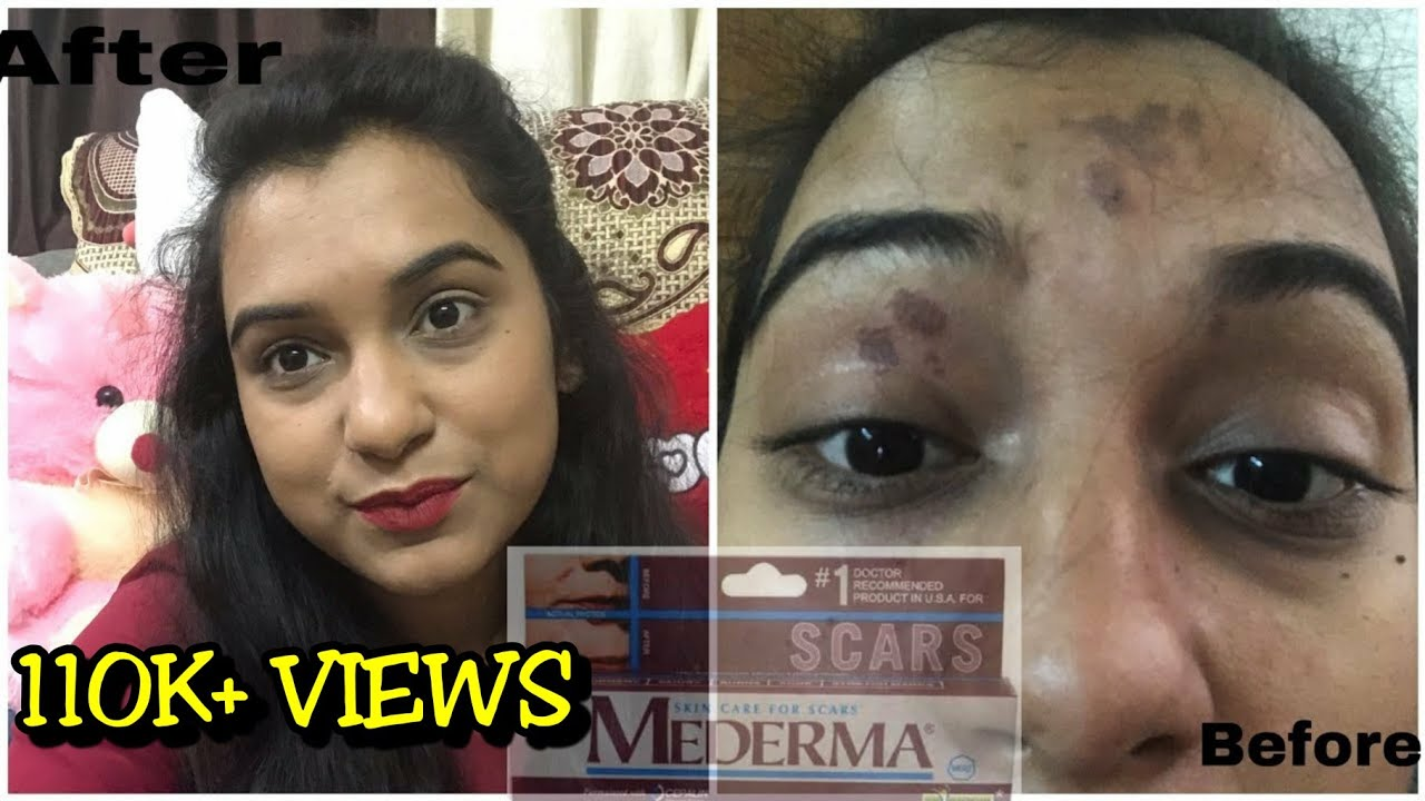 Mederma Cream Review How To Remove Acne Scar And Stretch Mark