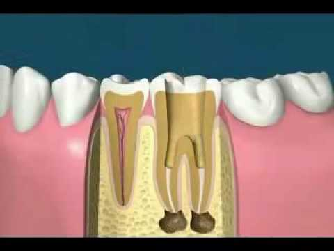 denver-root-canal-dentist