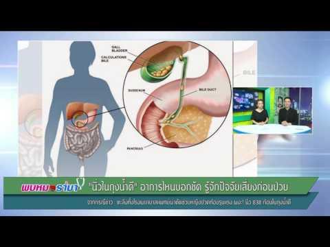 แพทย์ผ่าตัด ช่วยหญิงปวดท้องผงะ!นิ่ว838ก้อนในถุงน้ำดี : พบหมอรามา ช่วง Rama Update 29 มี.ค.60 (1/5)